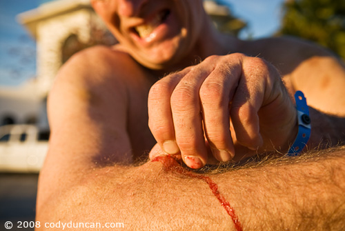 2008 baja 250 San Felipe. Rider pulling cactus thorns from arm after pre-run of course. © Cody Duncan Photography